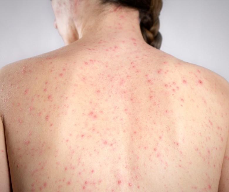 Mais 105 casos de sarampo no Paraná